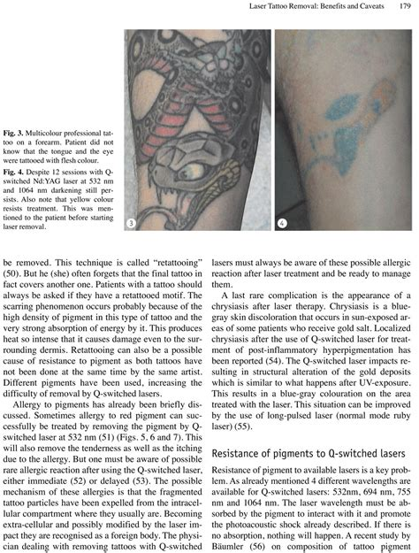 tattoo removal melbourne fl about tatts no removal center brevard florida