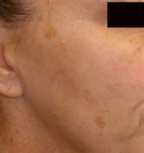 Brown spots on skin pictures causes home remedies treatment