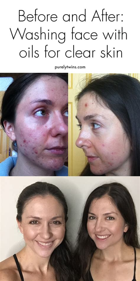 Coconut Detox Before And After by Why Use Oils To Help With Acne