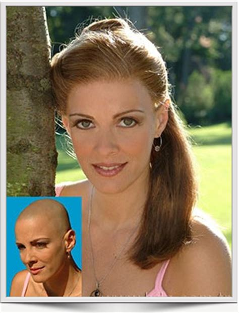 chemo and pubic hair pubic hair loss chemotherapy hair replacement for