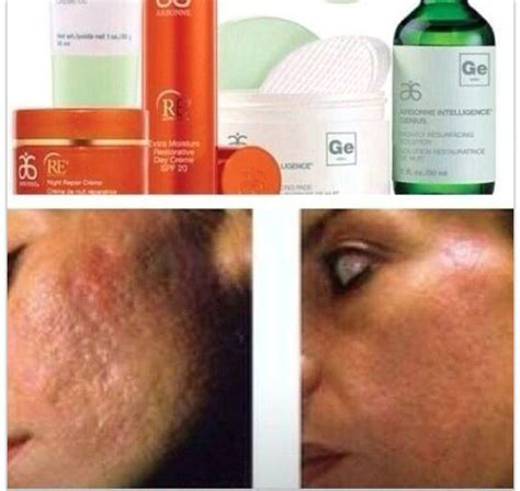 Can I Use Arbonne Detox Gel After Radiation Treatment by The 382 Best Images About Arbonne On Arbonne