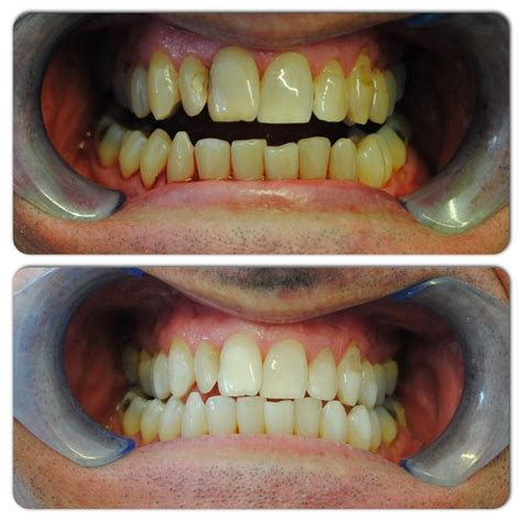 tooth whitening barlanark dental practice