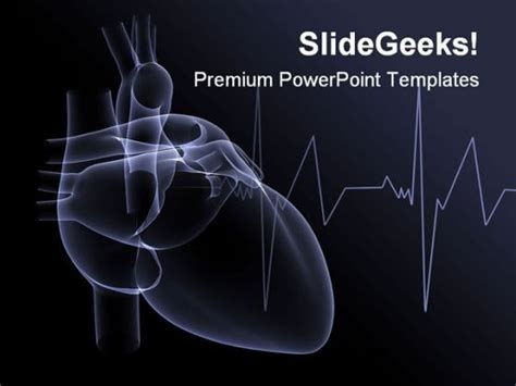 Heart X Ray Medical Powerpoint Template 1110 Powerpoint Presentation Designs Slide Ppt Cardiac Powerpoint Template
