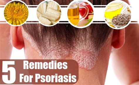 plaque psoriasis home remedy avie home