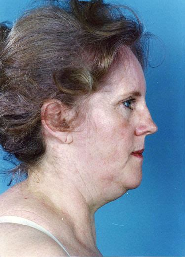 mini face lift new york facial plastic surgery mini lift and fat transfer to the face in new york city