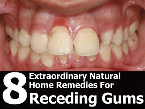 25 best ideas about receding gums on in