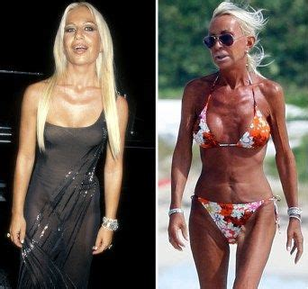 kimbella before plastic surgery 295 best images about plastic surgery before and after on
