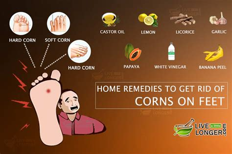 7 simple home remedies to get rid of corns on