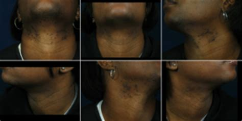 laser hair removal for african americans hair today gone tomorrow why african americans should
