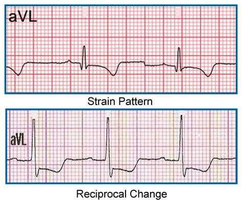 strain pattern ecg definition importance of lead avl in stemi recognition ecg medical