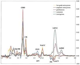 Proton Mr Spectroscopy Brain Tumor Classification By Proton Mr Spectroscopy