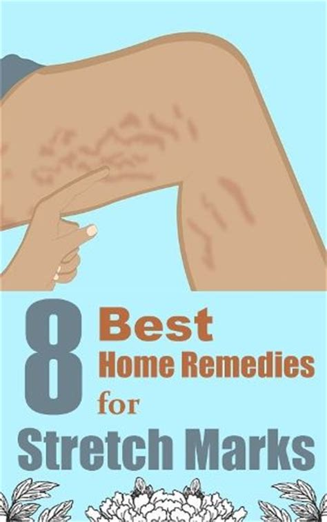 8 best home remedies for stretch marks favorite pins