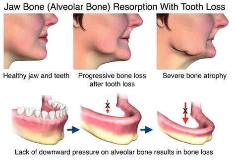 signs of jaw bone disease ehow ehow how to jaw bone health in ventura ca oral health jaw bone