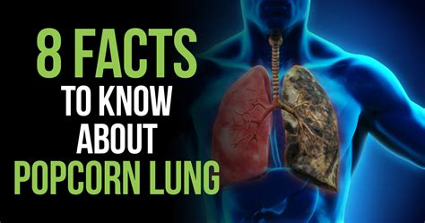 8 Things About by 8 Things To About Popcorn Lung Lizard Juice