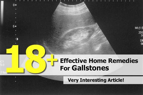 18 effective home remedies for gallstones