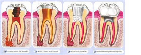 root canal diagram root canals bassendean and mt hawthorn absolute smiles