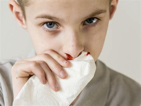sangue dal sedere cause il sangue dal naso tutto ci 242 dobbiamo sapere sull