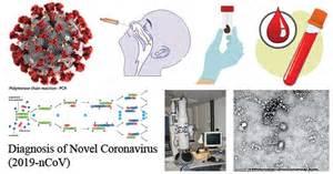 diagnosis   coronavirus sars   covid