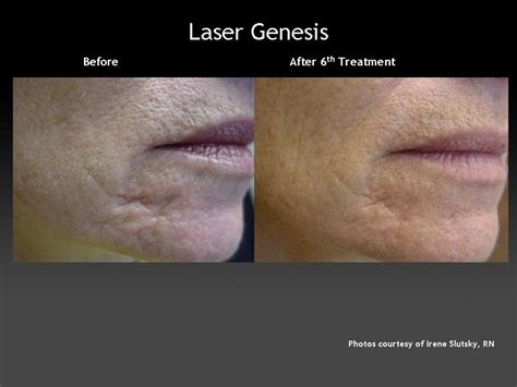 cutera laser genesis treatment laser genesis plastic surgery hub