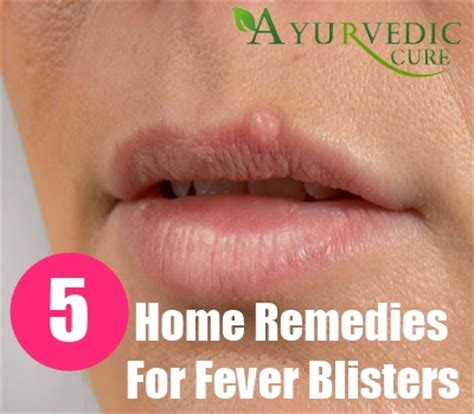5 fever blisters home remedies treatments and