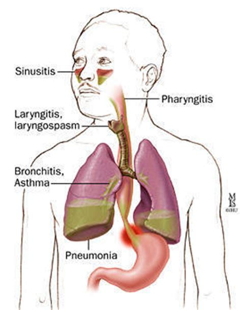 Is Zantac A Proton Inhibitor by Acid Reflux Proton Inhibitors Answers On Healthtap