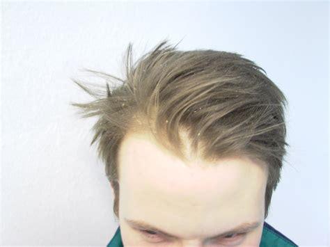infeccion cuero cabelludo infecciones cuero cabelludo related keywords