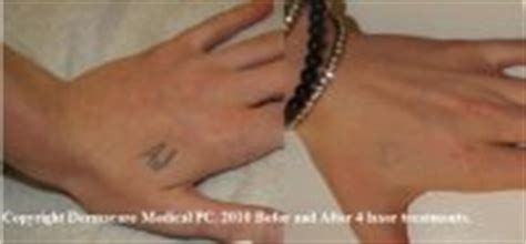 hand tattoo removal before and after laser tattoo removal new york