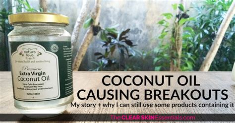 Coconut Breakout Detox by Coconut Causing Breakouts My Story The Clear Skin