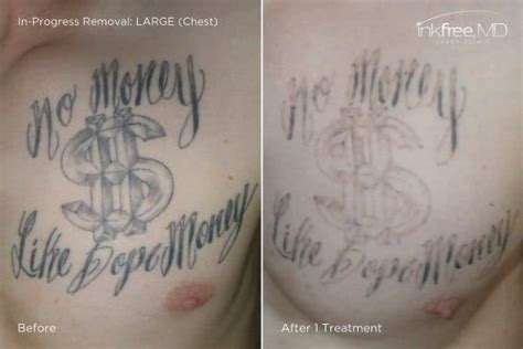 chest tattoo removal before after laser tattoo removal houston inkfree md laser clinic
