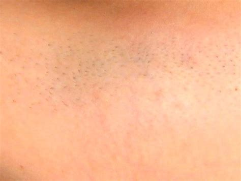 full brazilian hair removal before the first laser hair removal treatment 4 22 05