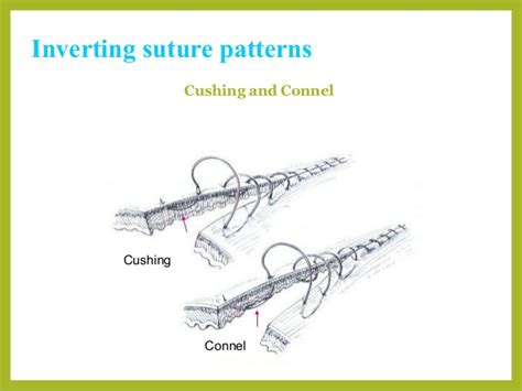 lembert pattern suture video image gallery lembert suture