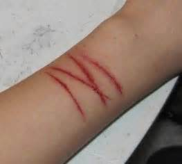 171 best images about self harm on pinterest anxiety