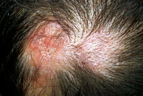 scalp itching and sores image gallery scalp sores