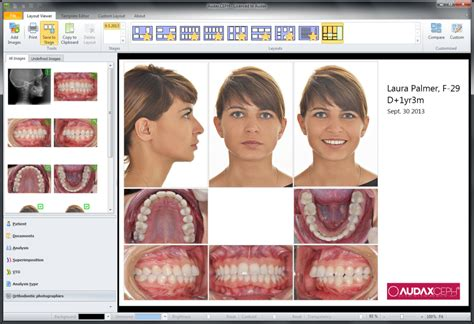 Audaxceph Reviews And Pricing 2017 Invisalign Photo Template