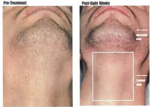 hair removal pics best hair removal cream for men men hair