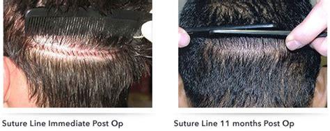 how is loop hair transplant done fut hair the best hair of 2018