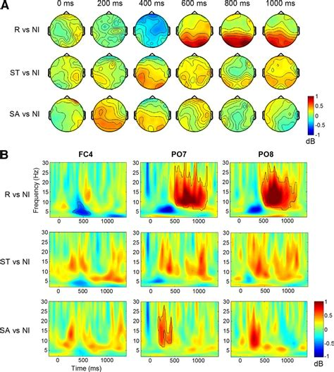 multivariate pattern classification fmri switch related and general preparation processes in task