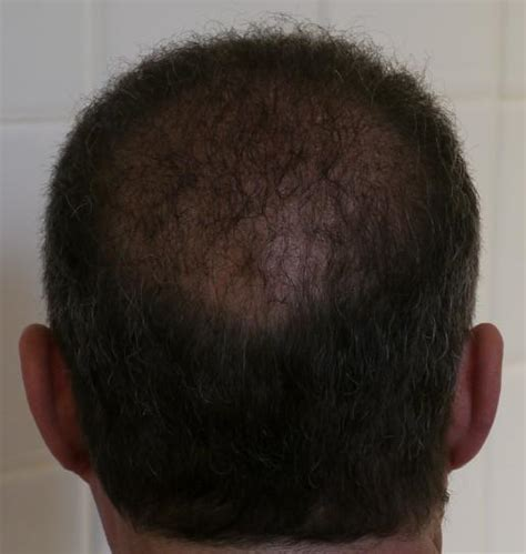 is hair transplant safe thierry received 3800 hairs using the fue safe method