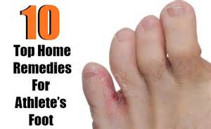 home cure for athlete s foot top 10 home remedies for athlete s foot