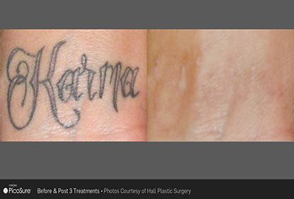 laser tattoo removal bay area removal east bay san jose pleasanton
