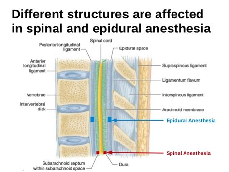 spinal vs epidural for c section image gallery spinal anesthesia