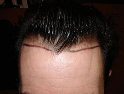 how thick is 1000 hair graft how thick is 1000 hair graft hair transplant 1000 grafts