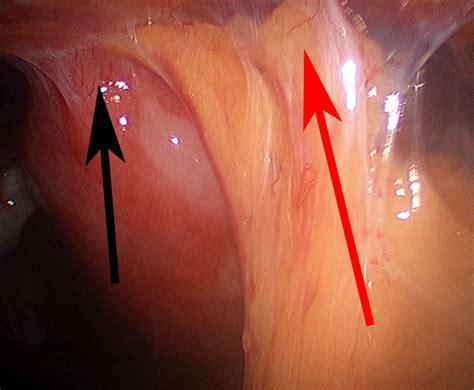 sterilization during cesarean section chances of pregnancy after tubal ligation during c section