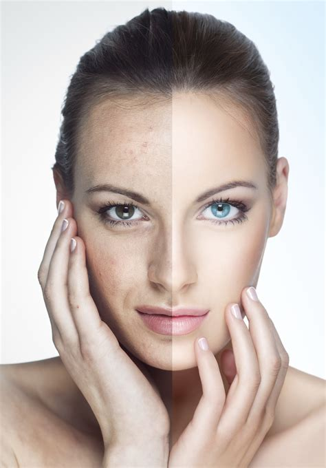 9 Skincare Treatments by Acne Thread Veins Chemical Peels Cryotherapy Treatments