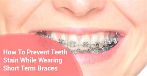 how to stop teeth dentistry blogs dental treatment richmond term