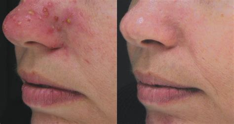nose treatment treatment for blackheads on the nose