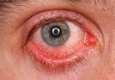 eyeing an eyeball risks high conjunctivitis causes treatment symptoms and risk