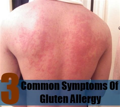 allergy symptoms common symptoms of gluten allergy how to recognize symptoms of gluten allergy diy