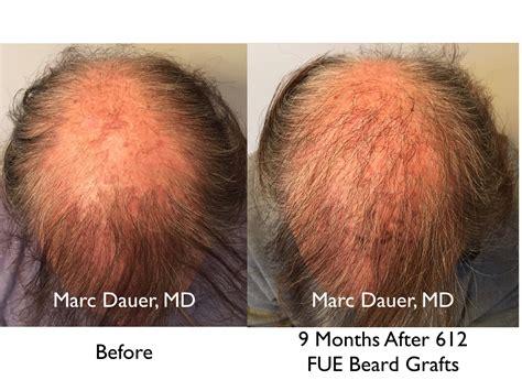 hair transplant calculator hair transplant graft calculator density calculator hair