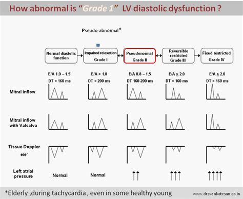 echo pattern meaning and now what is pseudo abnormal diastolic filling
